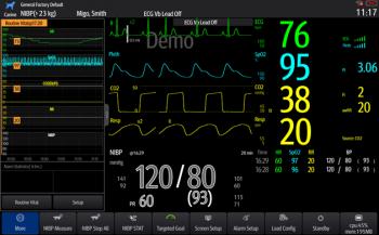 "Mindray ePM 12M Vet ""Basic"" mit Multigas-Modul"